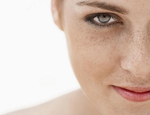 Cara con manchas en la piel